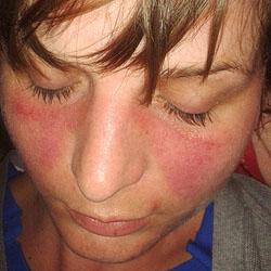 Fucoidan Works to Treat Lupus